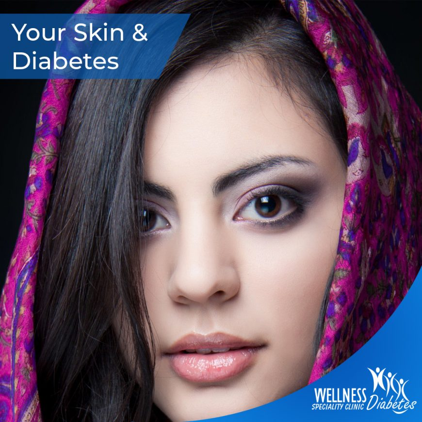 Taking care of your skin during diabetes